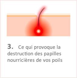 Lumiere Pulsee Cocoon Beaute Bien Etre Institut De Beaute Soins Du Corps Illustation Fonctionnement Etape 3