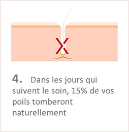 Lumiere Pulsee Cocoon Beaute Bien Etre Institut De Beaute Soins Du Corps Illustation Fonctionnement Etape 4