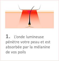 Lumiere Pulsee Cocoon Beaute Bien Etre Institut De Beaute Soins Du Corps Illustation Fonctionnement Etape 1